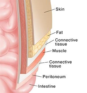 Mavefedt og muskler